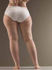 como engordar las caderas